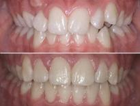 caso apinamiento ortodoncia vitoria logrono