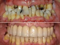 caso ortodoncia complejo vitoria logrono