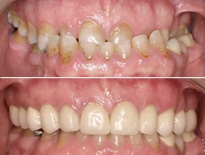 caso ortodoncia complejo vitoria logrono 02