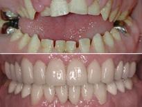 caso ortodoncia complejo vitoria logrono 0365