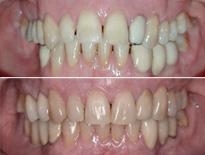 caso ortodoncia complejo vitoria logrono 04