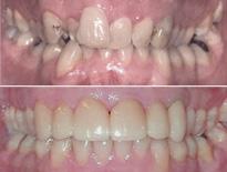 caso ortodoncia complejo vitoria logrono 0550