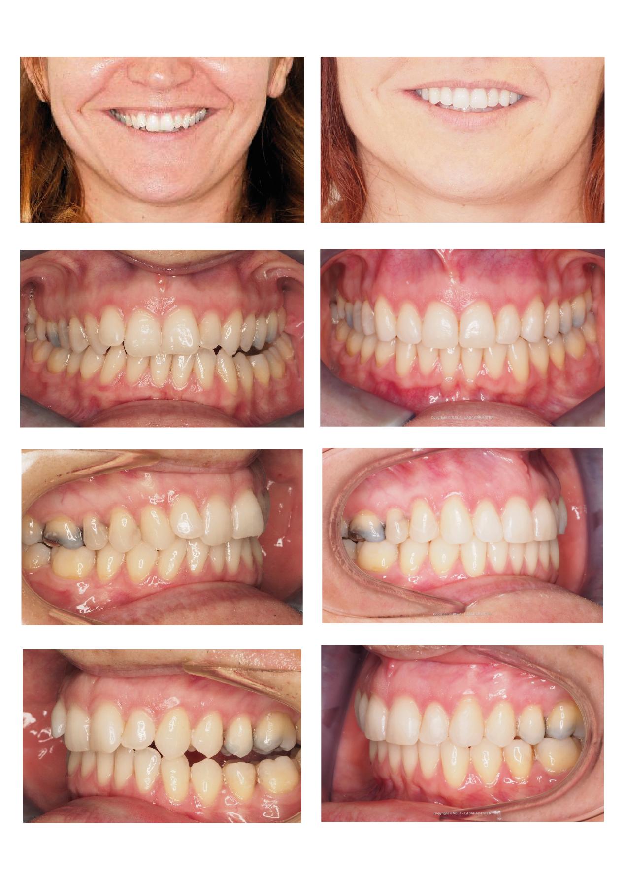 Casos resueltos con alineadores invisibles en Vela y Lasagabaster, ortodoncia Vitoria y Logroño