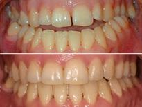 cirugia ortodoncia vitoria logrono 01