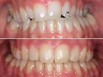cirugia ortodoncia vitoria logrono 02