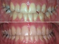cirugia ortodoncia vitoria logrono 03