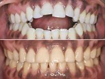 cirugia ortodoncia vitoria logrono 0453