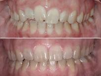 cirugia ortodoncia vitoria logrono 05