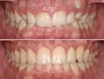 dientes incluidos ortodoncia vitoria logrono