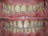 ortodoncia adultos vitoria logrono