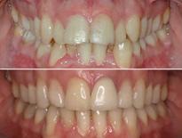 ortodoncia adultos vitoria logrono 02